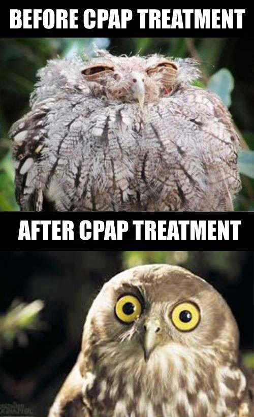 [Image: before%20and%20after%20CPAP.jpg]